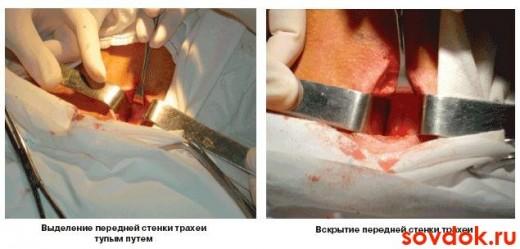Проведение трахеостомии этап 3 и 4