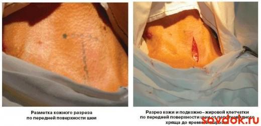 Проведение трахеостомии этап1 и 2