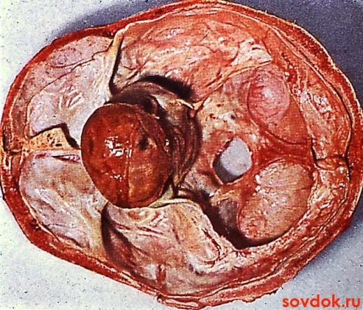 Аденома гипофиза: её профилактика и лечение, Советы доктора