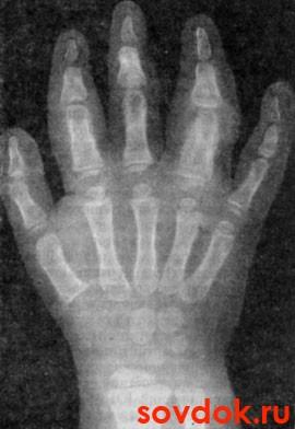 артрит сутавов кисти