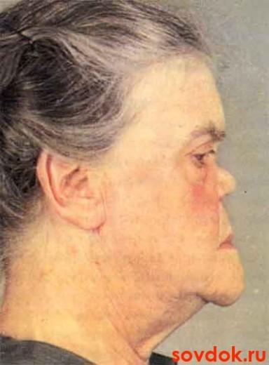 бабушка с нейросифилисом