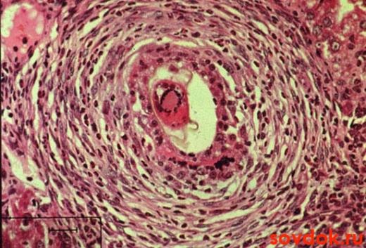 гистология - фиброз печени