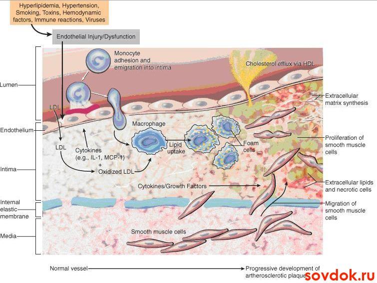 розувастатин для снижения холестерина