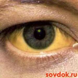 иктеричность склер при гепатите