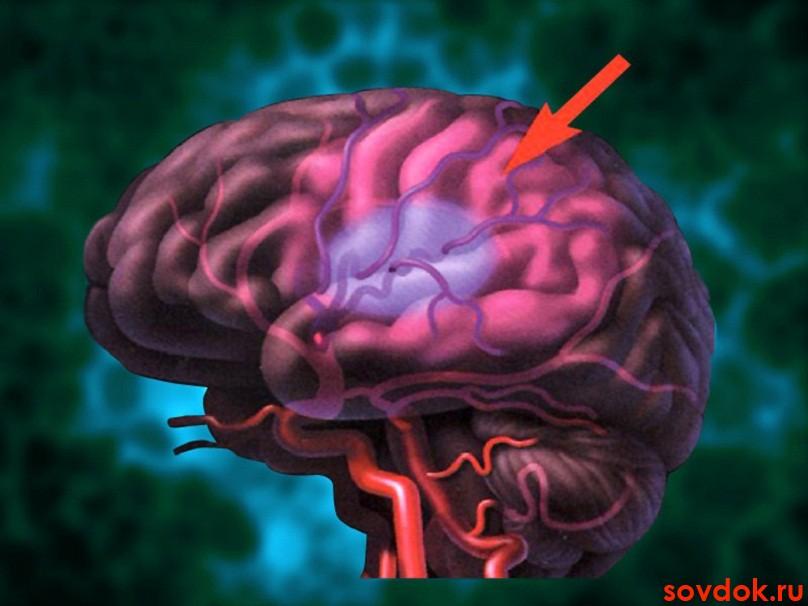 Калий и магний как элементы профилактики инсульта