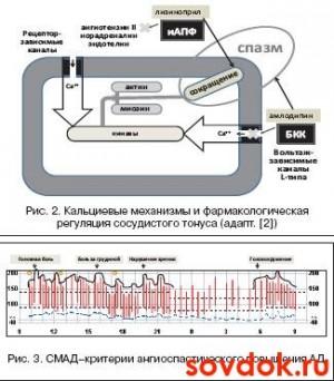 кальциевые механизмы и критерии СМАД