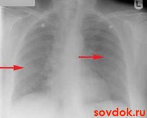 очаговая пневмония рентген