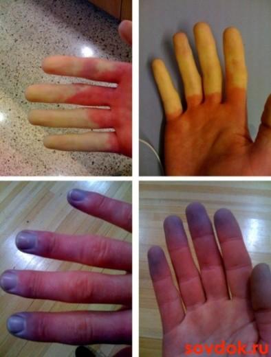 разные пальцы