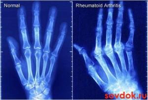 рентген - норма и патология