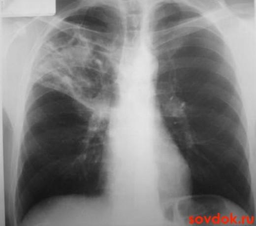 рентген при туберкулёзе