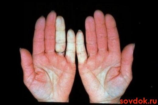 руки с синдромом рейно