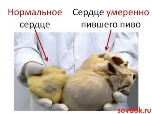 сердце нормальное и нет