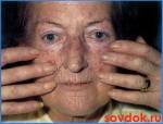 склеродермия начинается с синдрома рейно