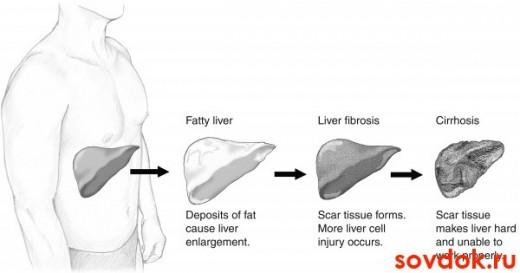стадии формирования цирроза