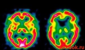 термограмма при энцефалопатии