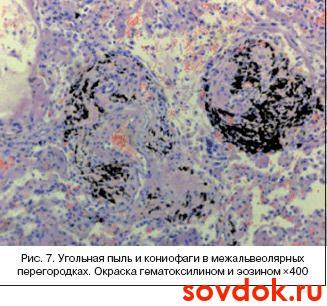 угольная пыль и кониофаги