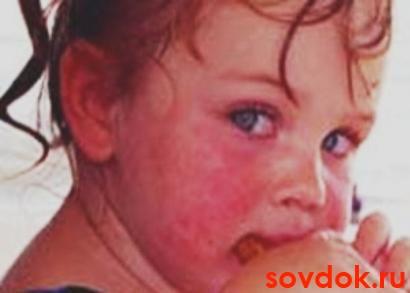 Бронхит у детей симптомы лечение  Азбука здоровья