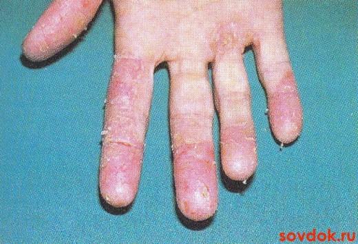 фотоаллергический дерматит рук