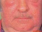 фотоаллергия лица
