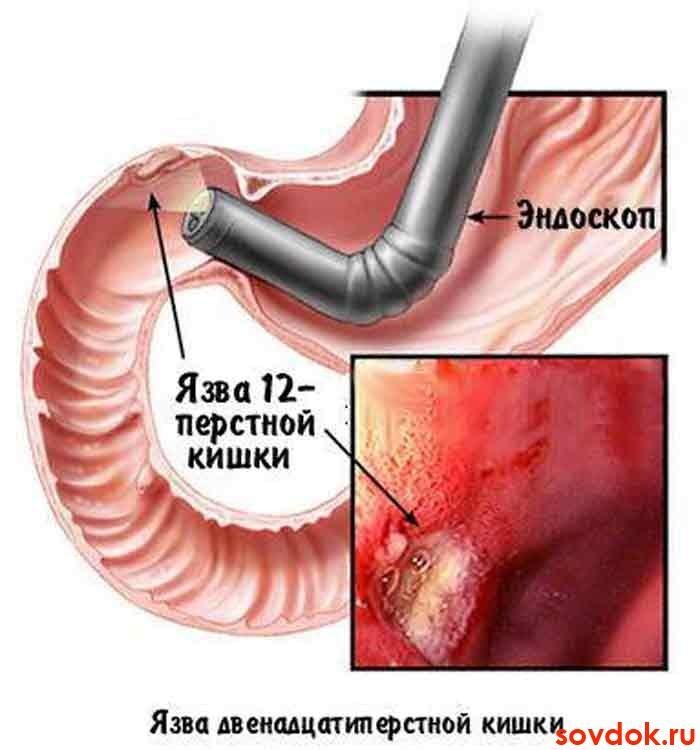 Консультации врача лечение нарушения эрекции в г калуга