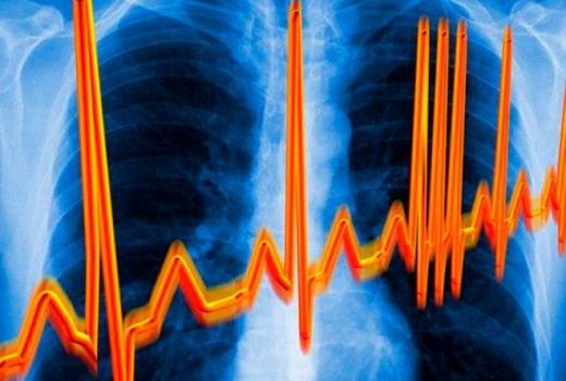Нерегулярные сокращения сердца при мерцательной аритмии