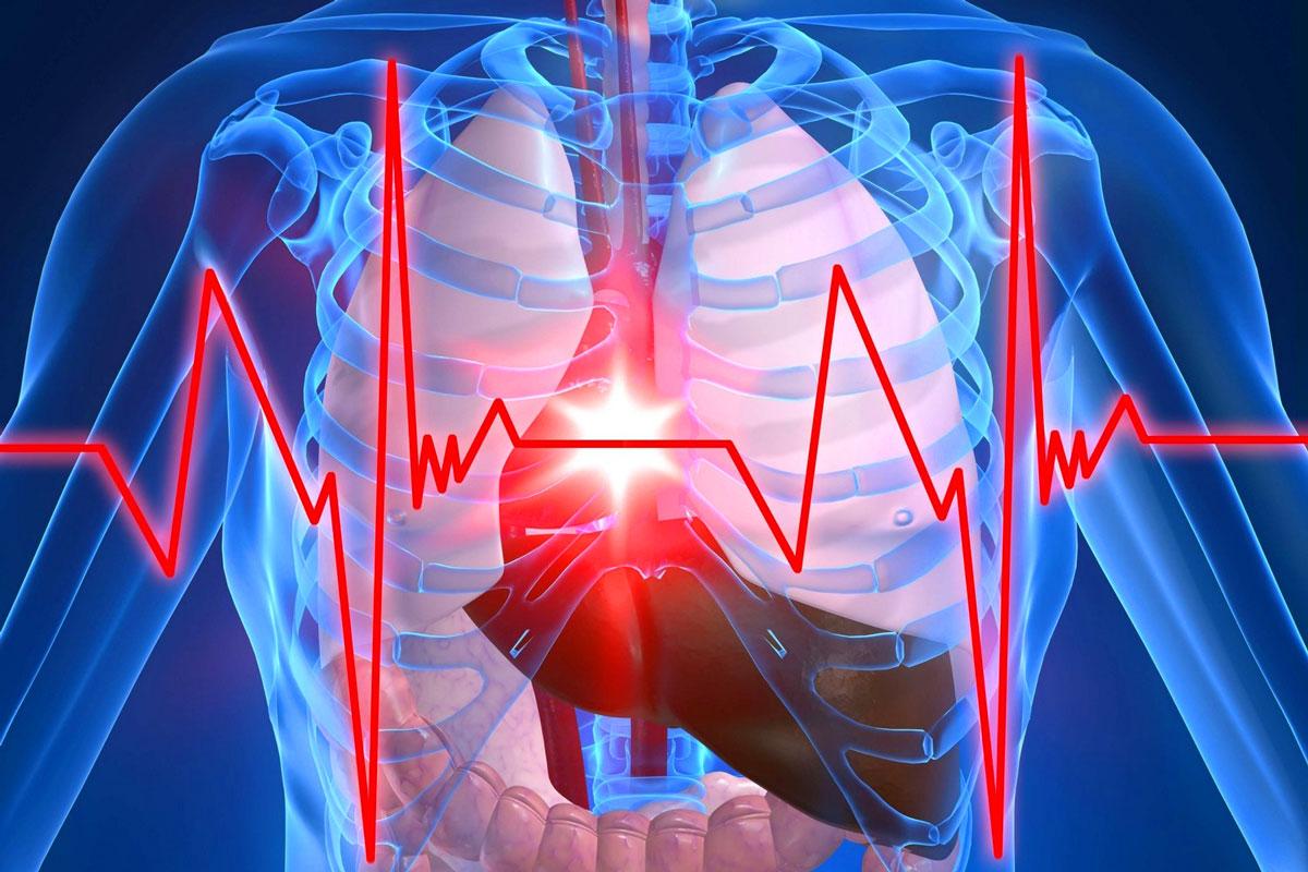 Стабильная стенокардия: важность медикаментозного лечения