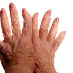 Диагностика  и  лечение   очаговой  склеродермии