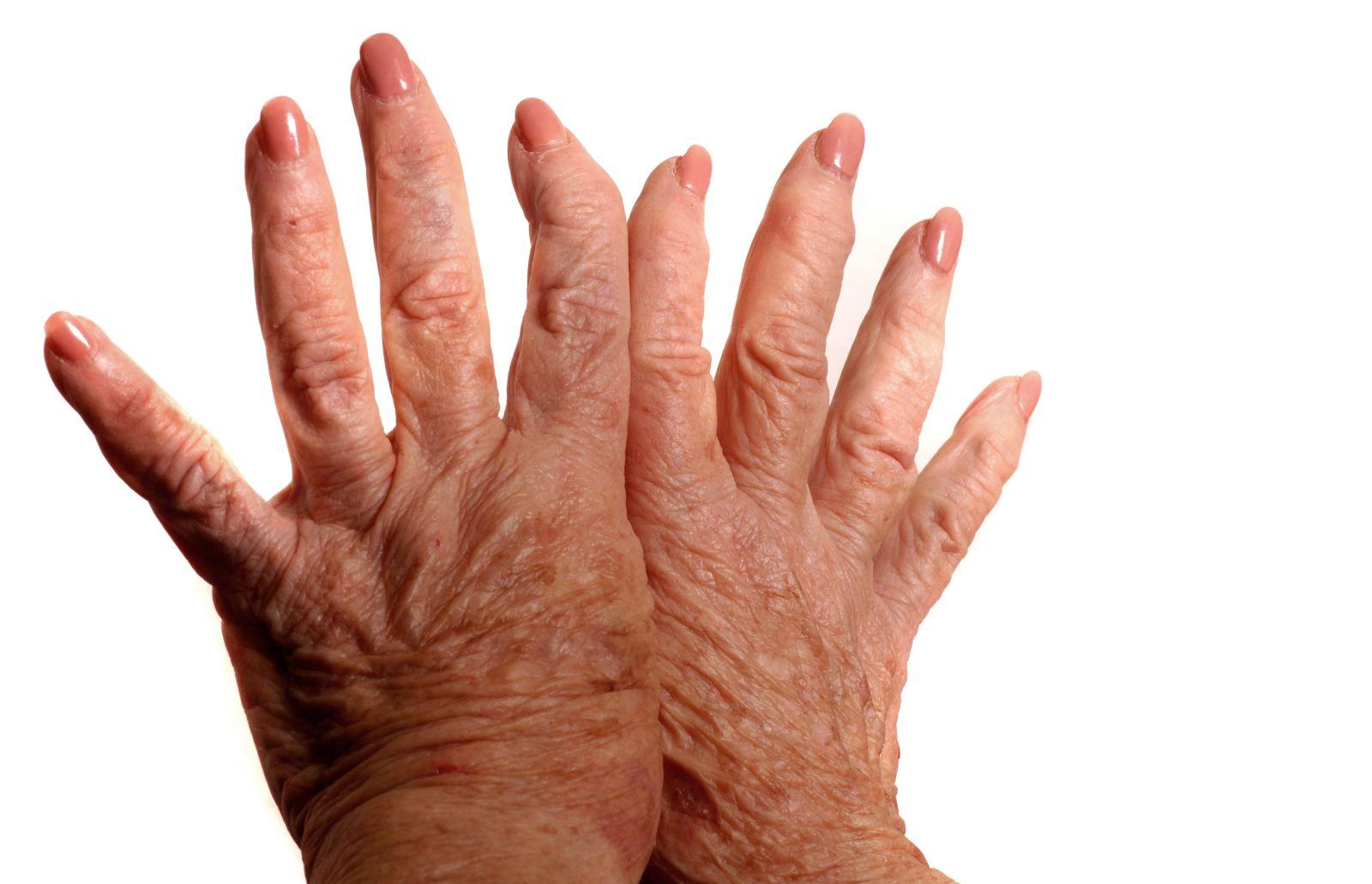 Грибок ногтя способы передачи