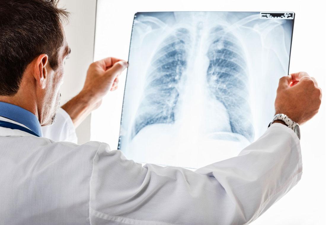 Новая информация о паренхиматозных болезнях лёгких