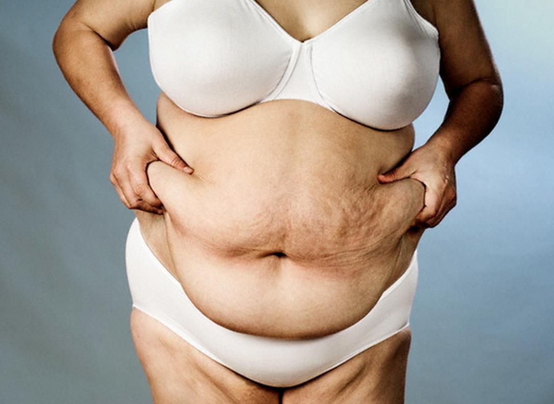 Нефропатия  у  пациентов  с  ожирением
