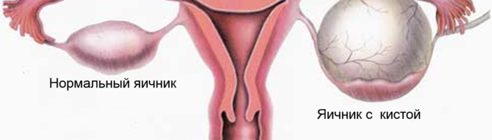 Как можно лечить кисту яичника
