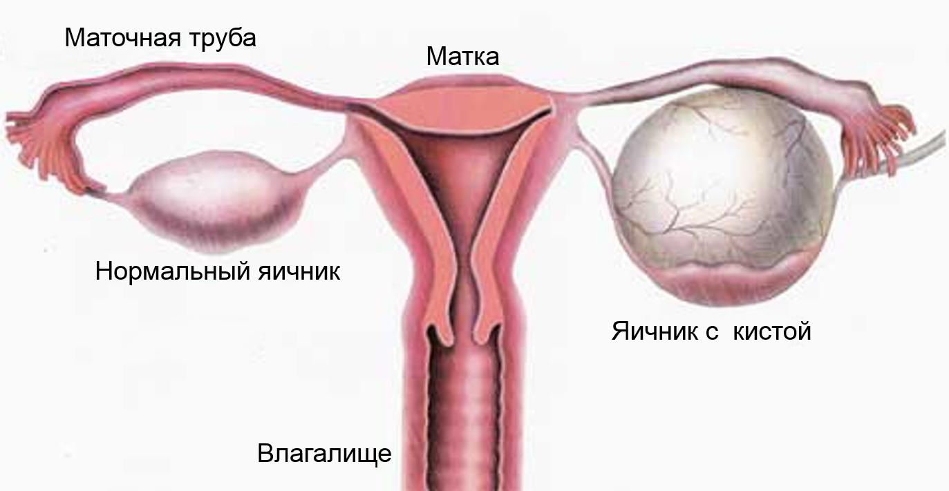 Как лечить кисту яичника без операции — современные методы
