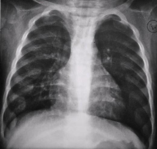 рентген снимок с признаками БА