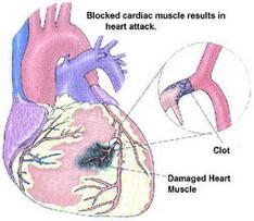 как развивается инфаркт миокарда