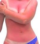 солнечный ожог первая помощь