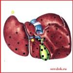 Жировая дистрофия печени