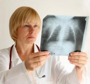 врач рассматривает рентген