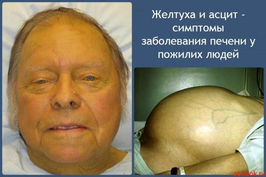 Желтуха и асцит - симптомы заболевания печени у пожилих людей