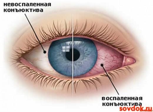 Воспалённый глаз