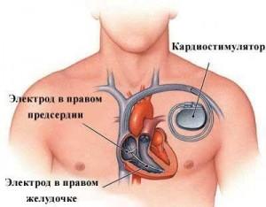 Схема имплантации электрокардиостимулятора