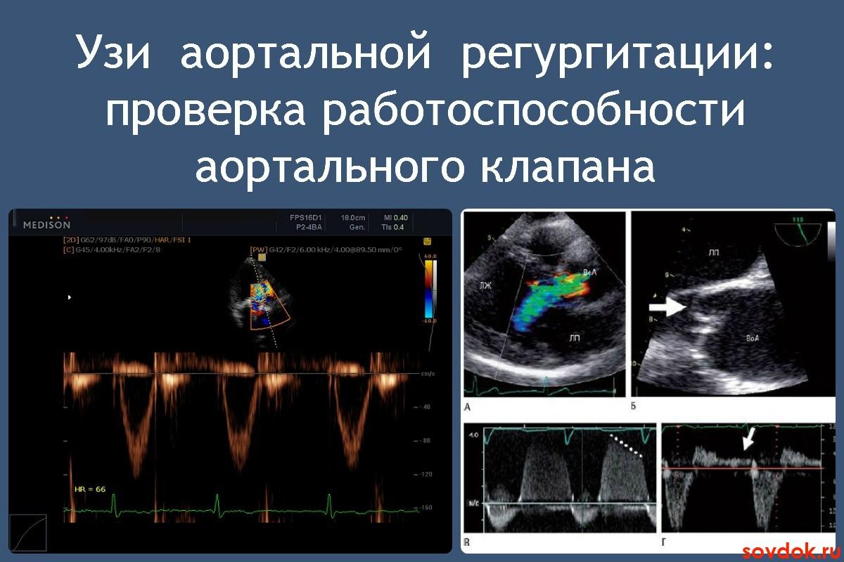 Симптомы, лечение и прогноз при аортальной регургитации