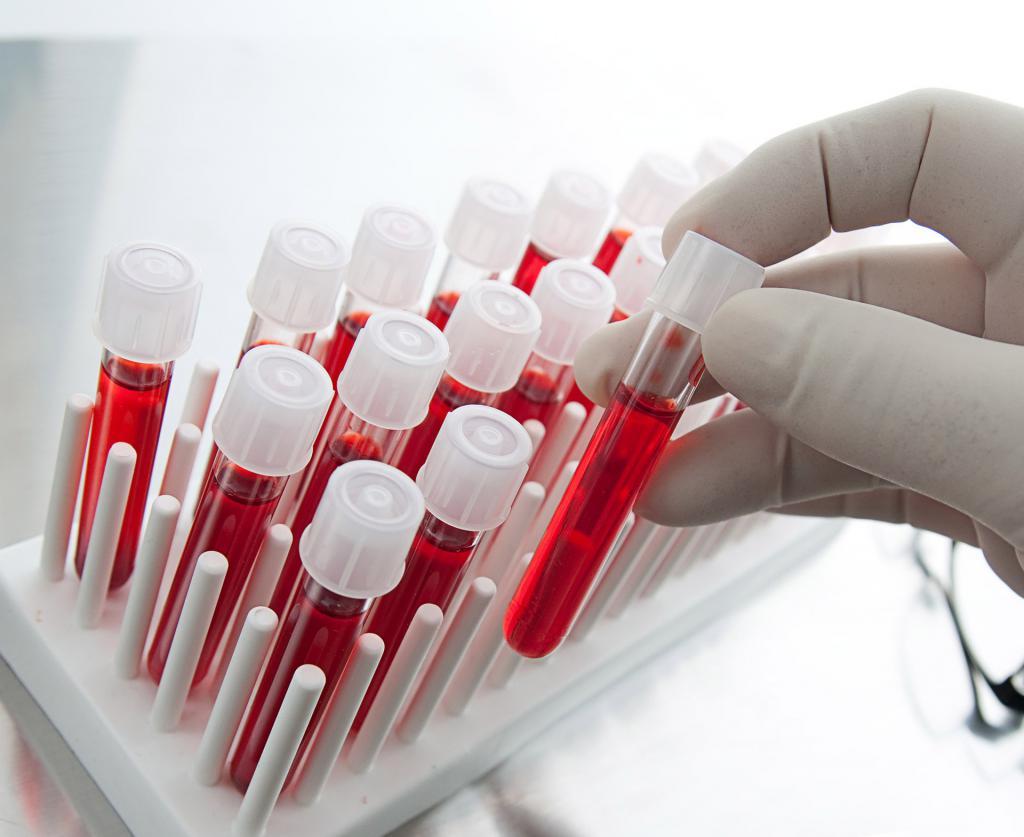 Сдаём общий анализ крови правильно: несколько советов от медиков