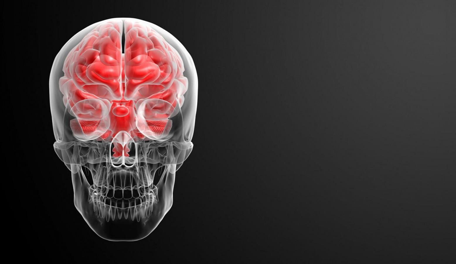 Кардиоэмболический  ишемический  инсульт: современные  подходы к диагностике  и   лечению