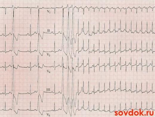 На ЭКГ пробежка желудочковой тахикардии