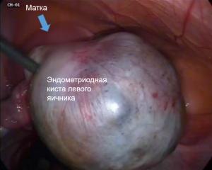 эндометриоз при операции