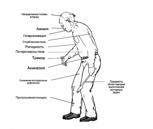 паркинсон симптомы
