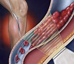Онтикоагулянты – профилактика тромбоза