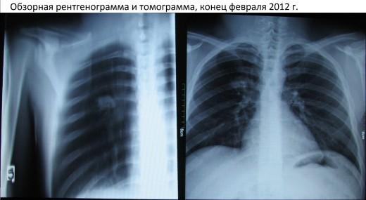 очаг туберкулеза на рентгене