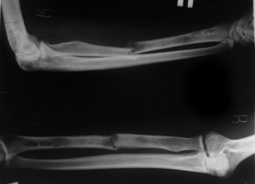 патологический перелом