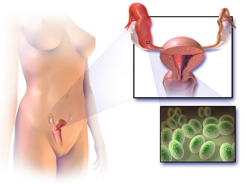 Причины гинекологических заболеваний у женщин